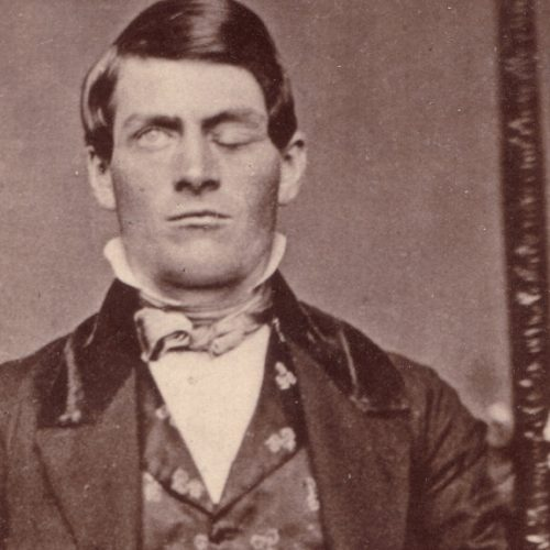 An Iron Bar Through The Eye – Phineas Gage and The Four Root Causes Of Bad Habits